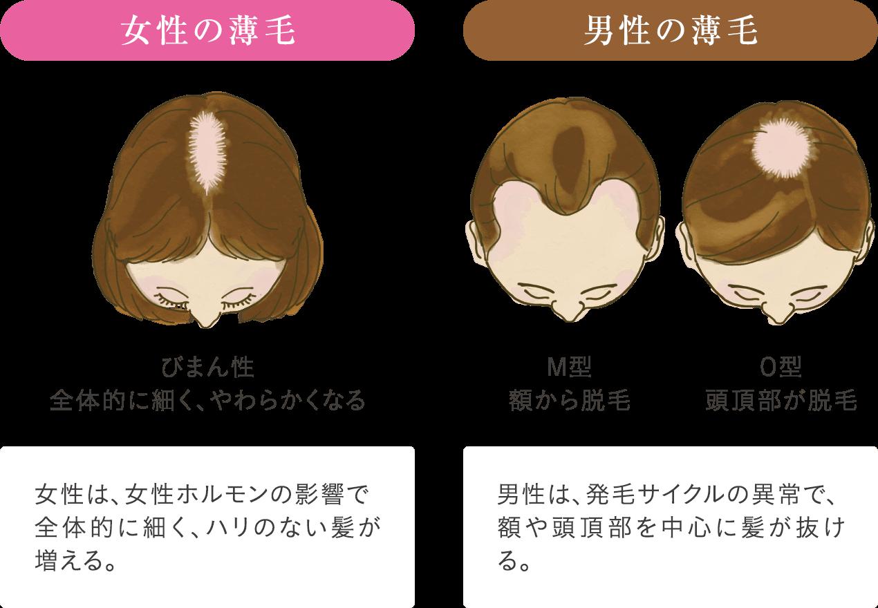 実は男性の薄毛と女性の薄毛では原因が違う!